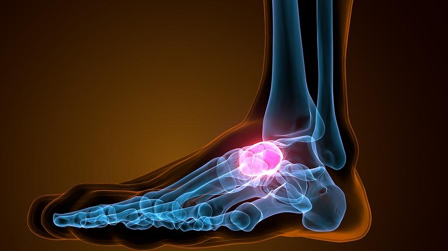 발목과 발(Ankle and Foot)