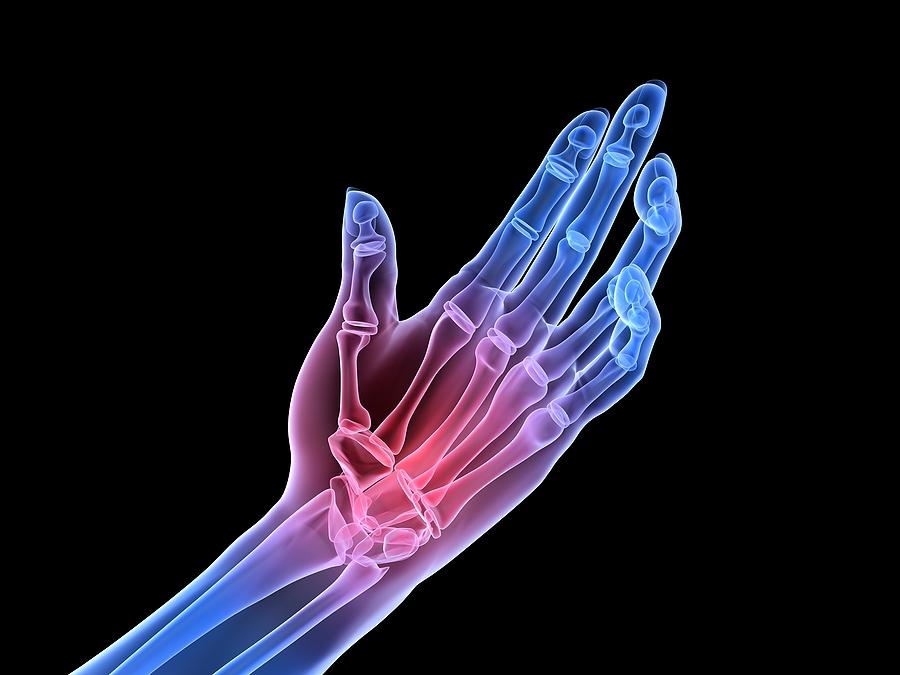 손목과 손(Wrist and Hand)